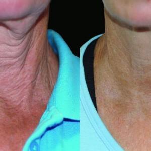 spl wrinkles